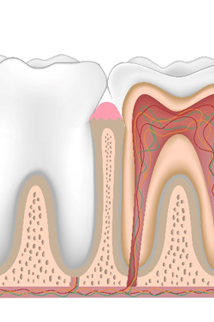 illustration of roots in tooth