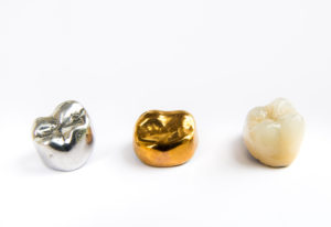 Gold, silver and white dental crowns